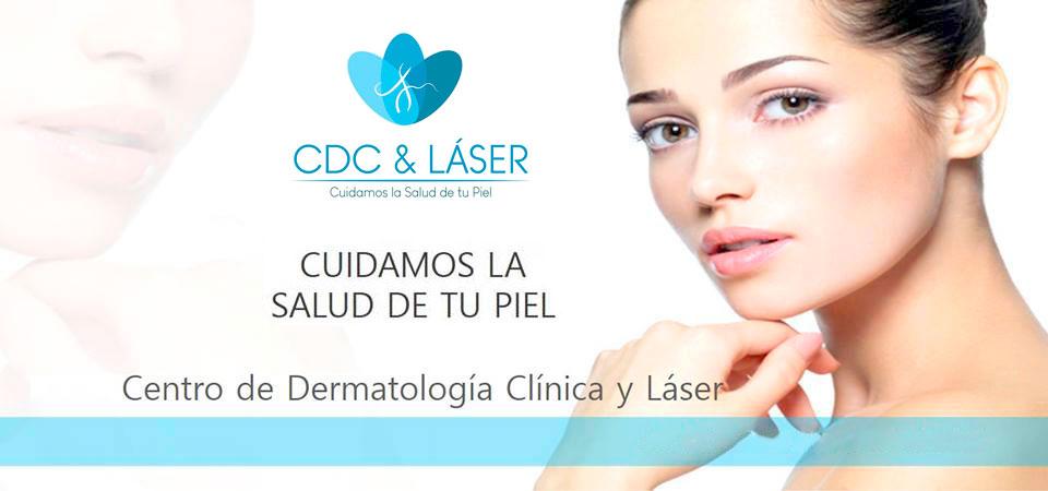 cdclaser-header